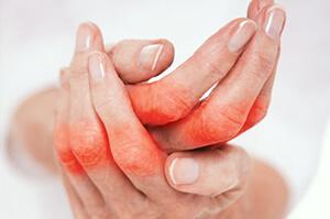 Schnelle Naturhilfe bei Rheuma, Arthrose